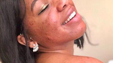 skin-positivity influencers